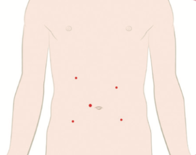 example of locations of small incisions for laparoscopic abdominal surgery links to small intestine and colon surgery