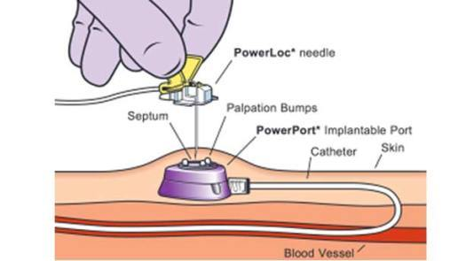 drawing of implantable port under the skin connected to catheter in the vein showing the location for needle access.